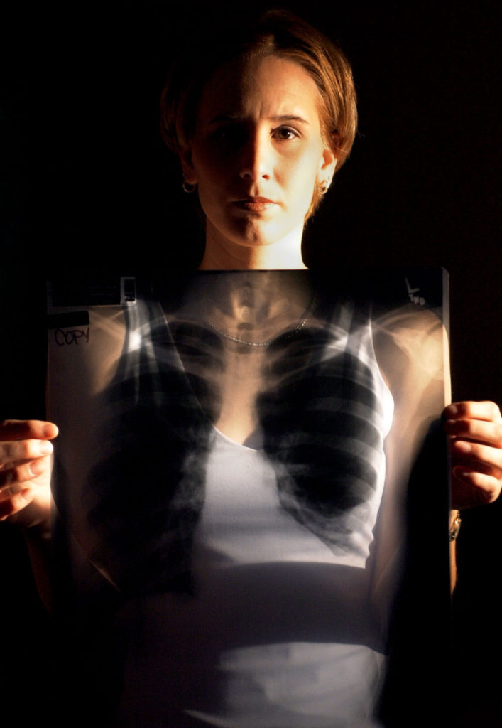 SP 119779 - - DELIVER TO: neighborhood times - - 3/22/2001 - - ST. PETE - - CAPTION INFO: *** -1/1- Marissa Venuti (cq), 21, displays a copy of an x-ray showing injuries including 3-4 crushed ribs as well as a collapsed lung (on left side of x-ray). The impact of the accident, which occurred a little over two weeks ago, also split her spleen, Venuti said. *** (GENERAL CAPTION INFO) - Venuti is a star athlete from St. Petersburg who nearly died in a freak accident. Venuti was the Times' All-county soccer player of the year a couple of years back. She's now playing at Elon College. She recently nearly died when she was hit with a hammer (the kind a track person whirls around his head and flings) in the ribs. She was observing a workout when the hammer thrower lost control and hit her, cracking her ribs and damaging her spleen. It was a life-threatening injury and she spent 11 days in the hospital. She's now at home. (note: general caption info taken directly from story summary section of the photo request.) - - Times Photo By: Dirk Shadd - - Story By: page - - SCANNED BY: dirk - - RUN DATE: 3/25/2001